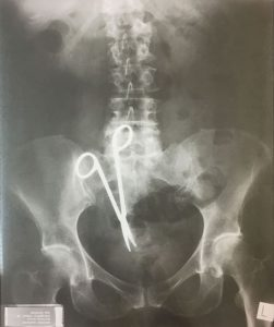Medical Instrument Left in Situ after Abdominal Operation